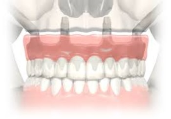 Zygoma All-on-4 implantaten