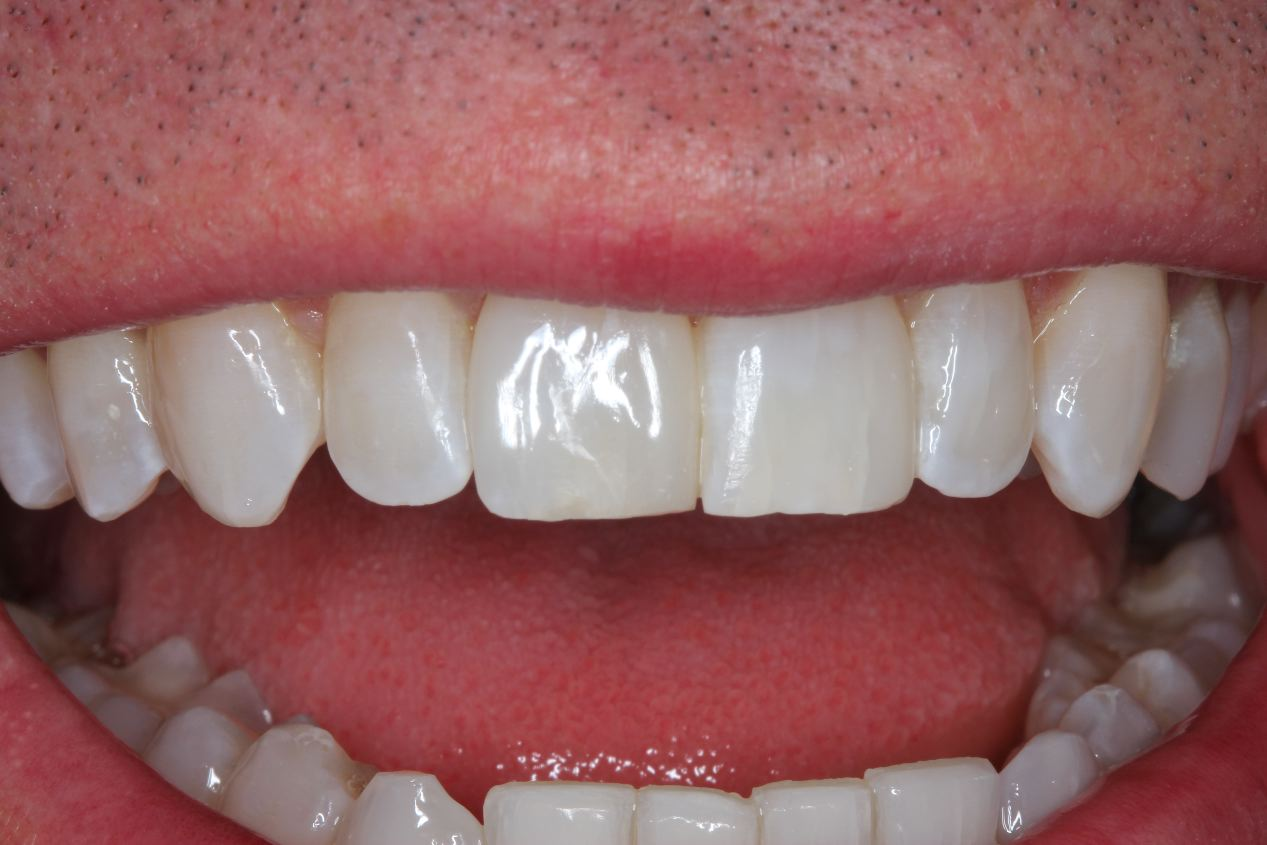 Tanden composiet prijs