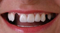 tanden facings orthodontie bleaching